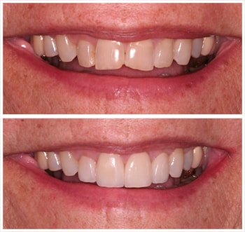 First before and after smile of an actual patient of Dr. Wonsavage, one of our cosmetic dentists Hanover NH.