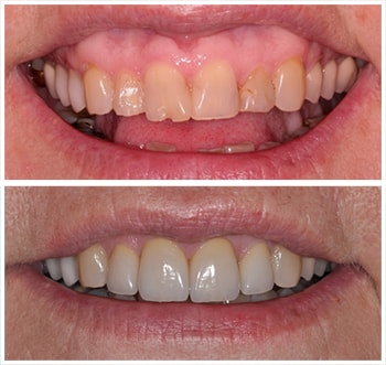 Second before and after smile of an actual patient of Dr. Wonsavage, one of our cosmetic dentists Hanover NH.