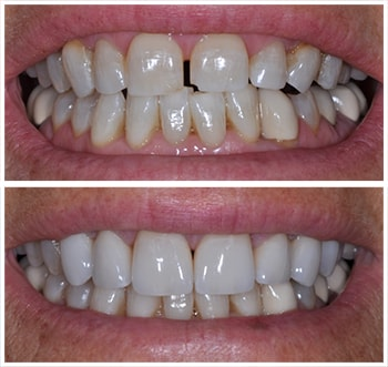 Third before and after smile of an actual patient of Dr. Wonsavage, one of our cosmetic dentists Hanover NH.