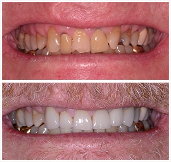 Fourth before and after smile of an actual patient of Dr. Wonsavage, one of our cosmetic dentists Hanover NH.