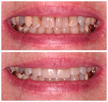 Fifth before and after smile of an actual patient of Dr. Wonsavage, one of our cosmetic dentists Hanover NH.