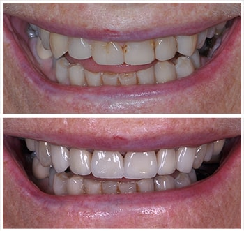 Before and after smile of A.K., an actual patient of Dr. Melkers, one of our cosmetic dentists Hanover NH.