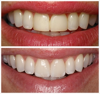 Before and after smile of C.H., an actual patient of Dr. Melkers, one of our cosmetic dentists Hanover NH.