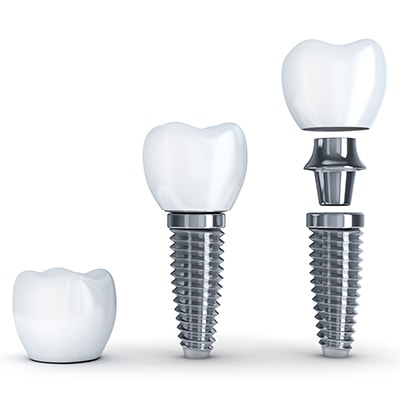 The anatomy of a dental implant for Hanover patients