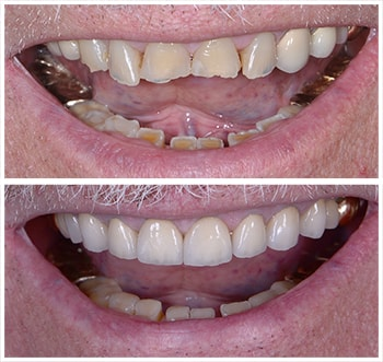 Before and after smile of K.K., an actual patient of Dr. Melkers, one of our cosmetic dentists Hanover NH.