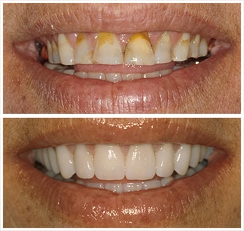 Before and after smile of L.P., an actual patient of Dr. Melkers, one of our cosmetic dentists Hanover NH.