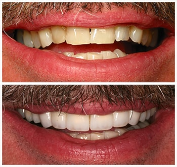 Before and after smile of R.P., an actual patient of Dr. Melkers, one of our cosmetic dentists Hanover NH.