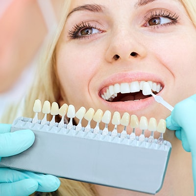 Patient getting teeth whitening with a shading