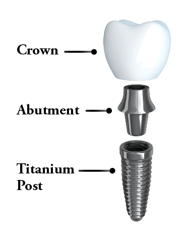 Anatomy of the three parts of a dental implant - post, abutment, and crown.